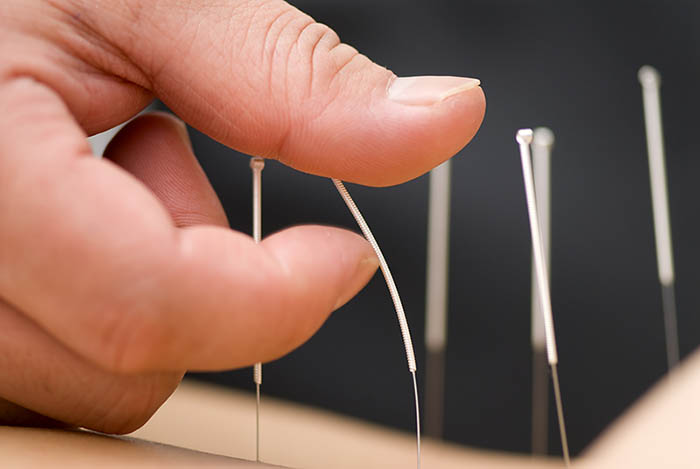 thin needles for acupuncture