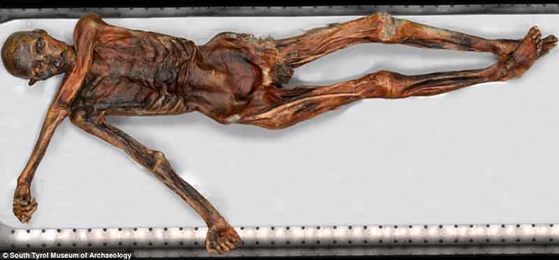 the examination of otzis body Iceman mummy: 5,000-year-old red blood cells discovered -- oldest blood known to modern science date: may 2, 2012 source: european academy of bozen/bolzano.