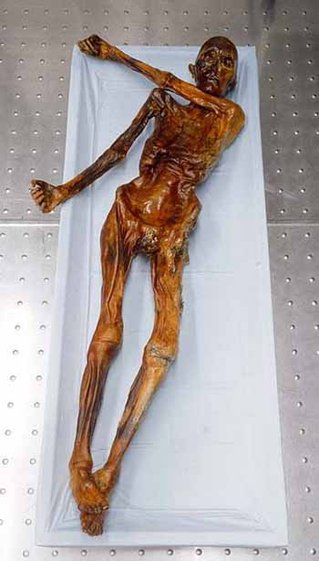 Otzi the Iceman (also spelled Oetzi and known also as Frozen Fritz)