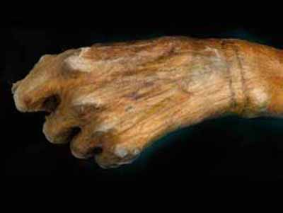 Oetzi iceman's tattoos came from fireplace MSNBC - July 17 ...
